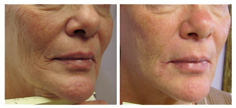 traitement des rides du visage